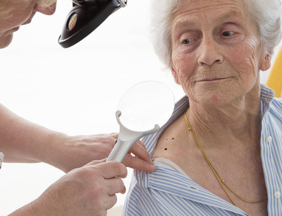 Cancer de la peau chez les personnes âgées : prévention et dépistage