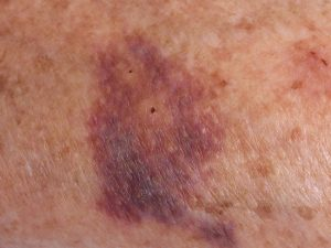 Les hématomes chez les personnes âgées : causes et prévention