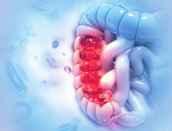 Le cancer du côlon chez les personnes âgées : symptômes et prévention